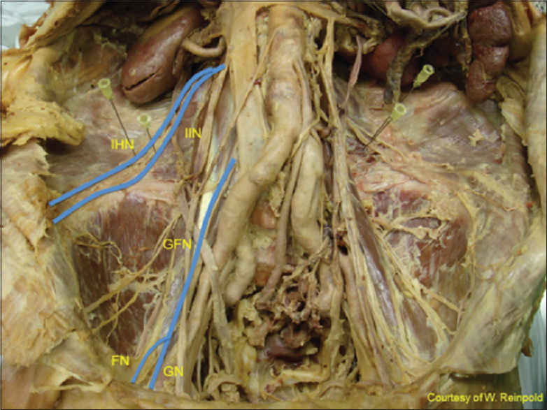 Inguinal neuroanatomy: Implications for prevention of ...