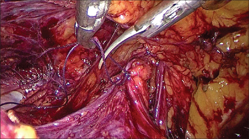 Prevention of seroma formation after laparoscopic inguinoscrotal